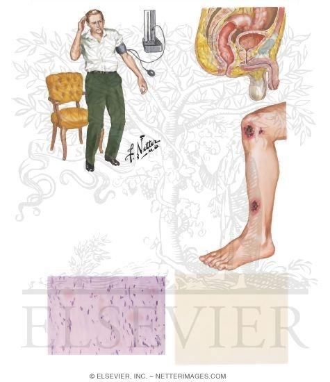 neuropathie neuropathie traitement. Black Bedroom Furniture Sets. Home Design Ideas