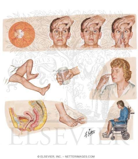 Рассеянный склероз.если беременна