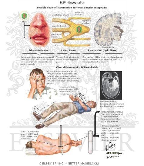 Herpes simplex encephalitis treatment