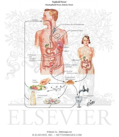 geschädigte darmflora symptome