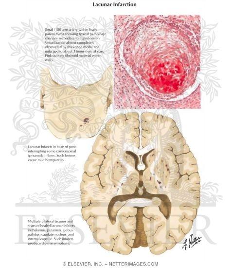 Acute lacunar infarction: hyperintense signal (12mm) on