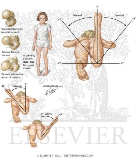 Internal hip rotation, increasing ROM