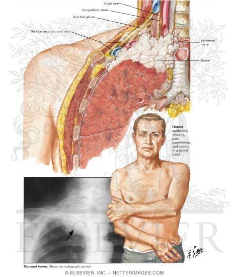Sternum discomfort bottom
