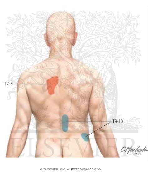 Болит под левой лопаткой в спине как лечить