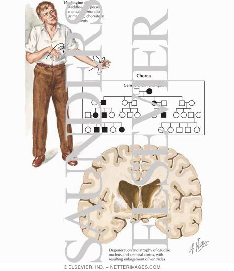 Huntington's Disease - Netter Medical Images