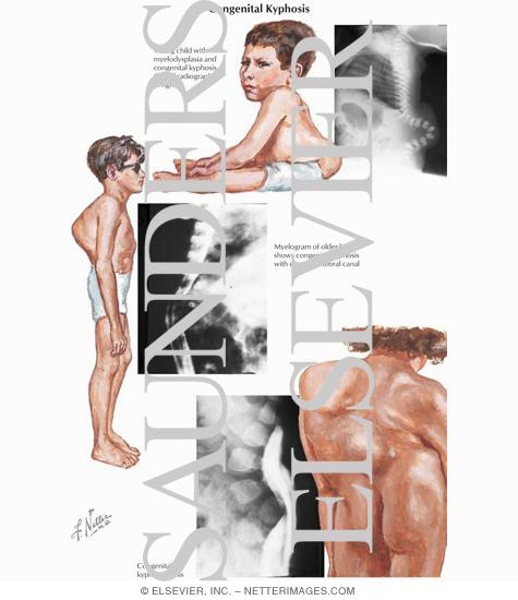 Congenital Spondylolisthesis and Spondylolisthesis - Treato