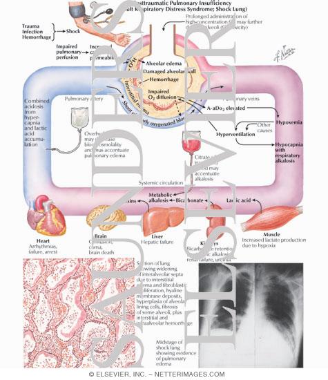 acute adult disease respiratory