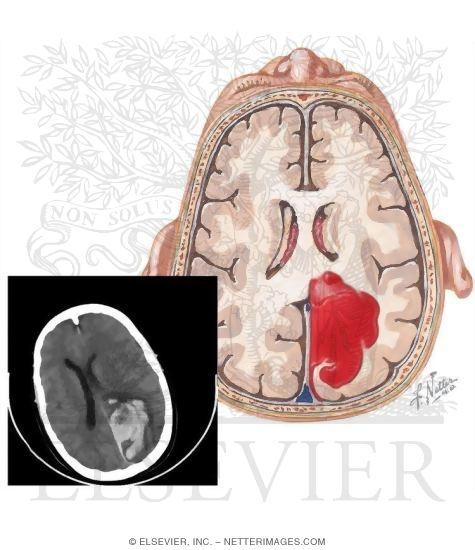 Intracranial Hemorrhage in aIntracranial Hemorrhage