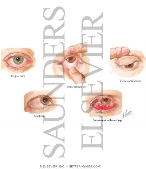 Conjunctivitis Episcleritis Vs Conjunctivitis Conjunctivitis