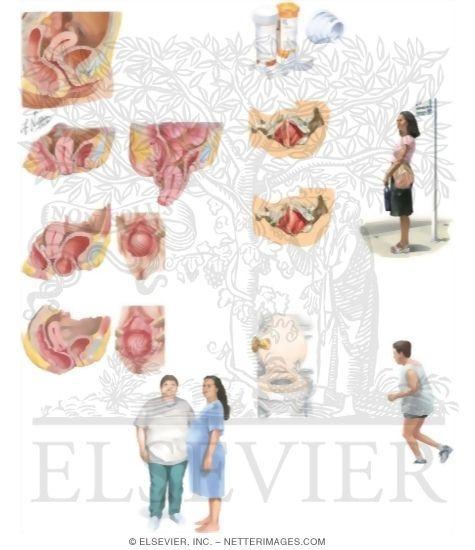 uterin prolaps super fransk