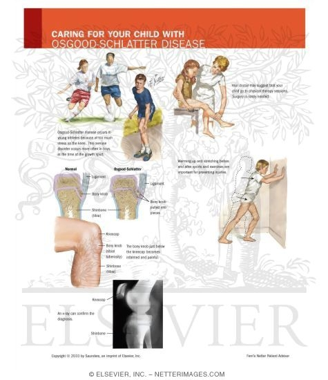 Osgood Schlatters Disease. Osgood-Schlatter Disease