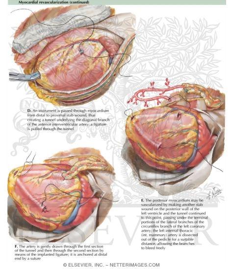 Myocardial revascularization
