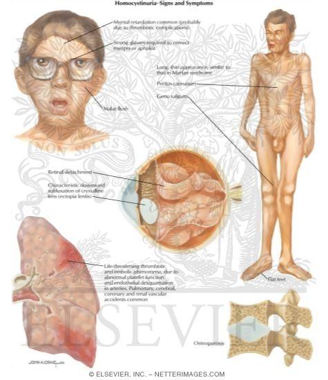 clostridium tratament