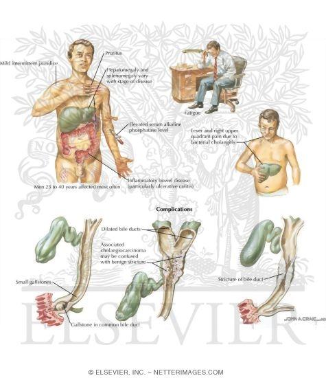 prevention of gallstones symptoms