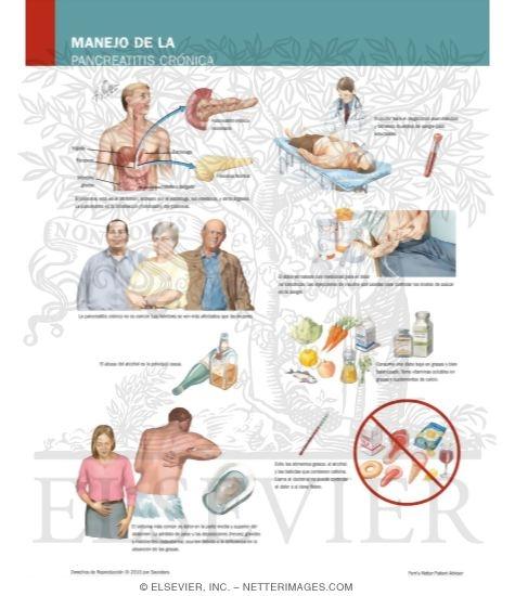can gallbladder attack kill you