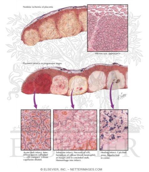 Placental Infarcts