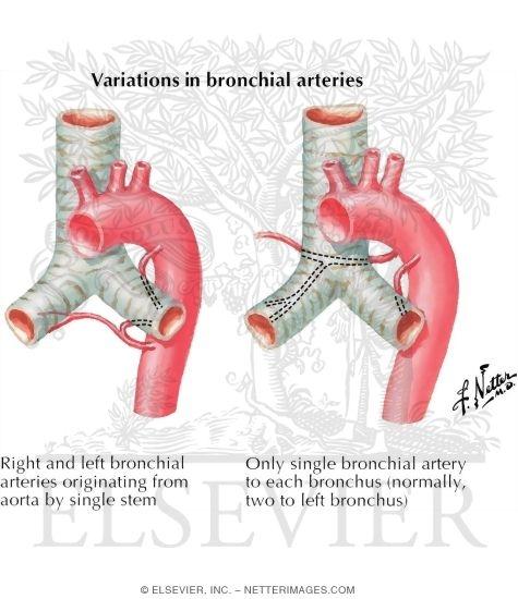 variations in bronchial arteries