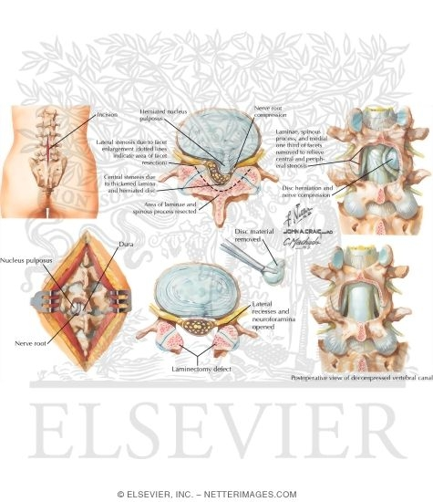 Discectomy And Laminectomy Laminectomy and DiscectomyDiscectomy And Laminectomy