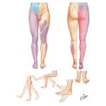 Illustration of Segmental Sensory Innervation (Dermatomes) of Lower Limb Dermatomes of Lower Limb from the Netter Collection