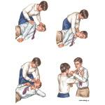 Clonic seizure symptoms