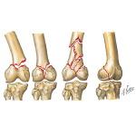 zlomenina distálního femuru