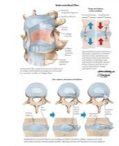 Illustration of Intervertebral Disc from the Netter Collection